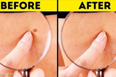 8 Home-Made Remedies That Will Help You Get Rid Of Skin Tags